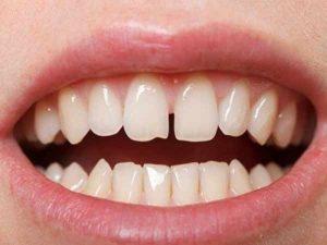 Vận mệnh của những người răng cửa thưa thì thế nào?