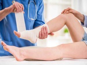 Bong gân cổ chân và mẹo xử lý